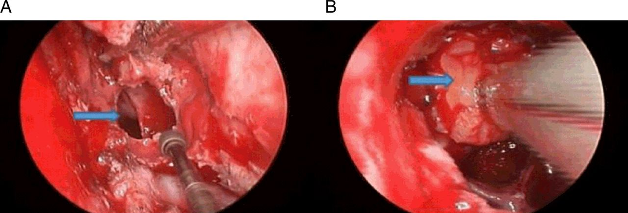 Surgical Outcomes Of The Endoscopic Transsphenoidal Route