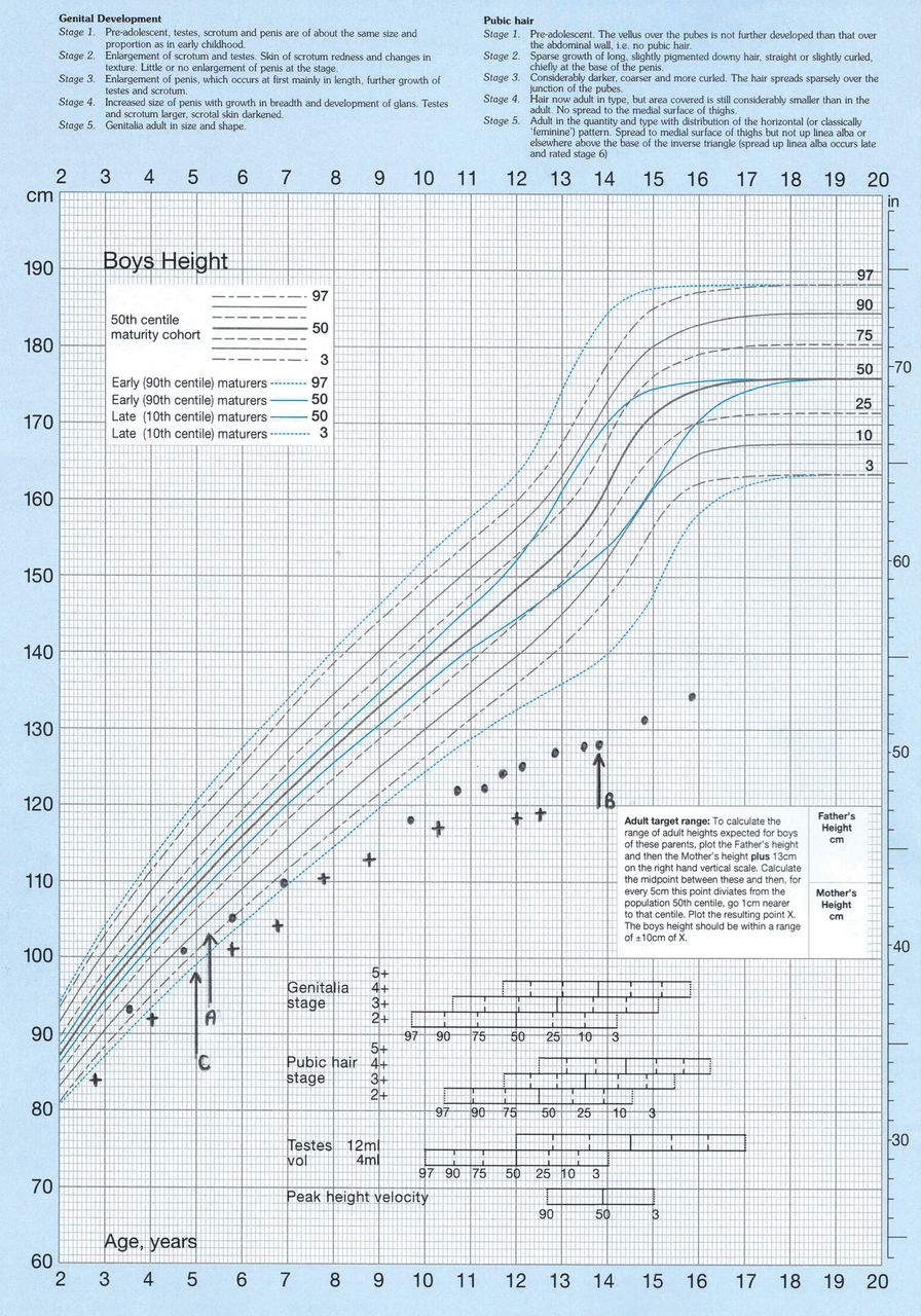 Short stature and pubertal delay in duchenne muscular dystrophy download figure open in new tab download powerpoint figure 1 example growth chart28 of two boys nvjuhfo Images