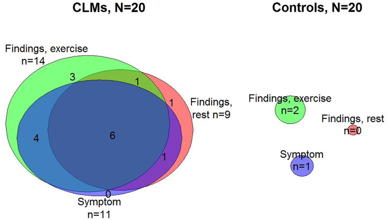 laryngomalacia diagram - photo #11