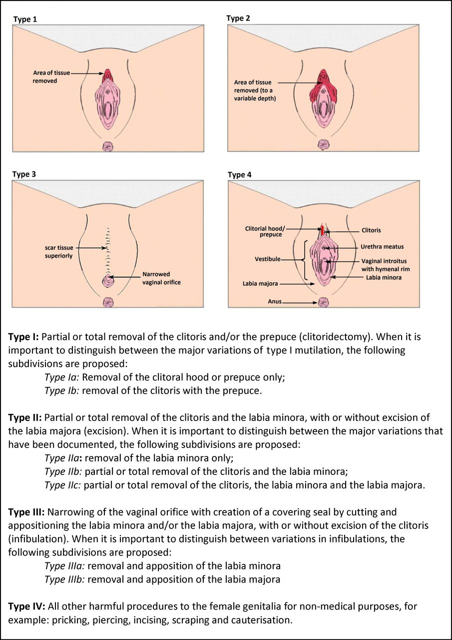 Removal of clitoris in women think