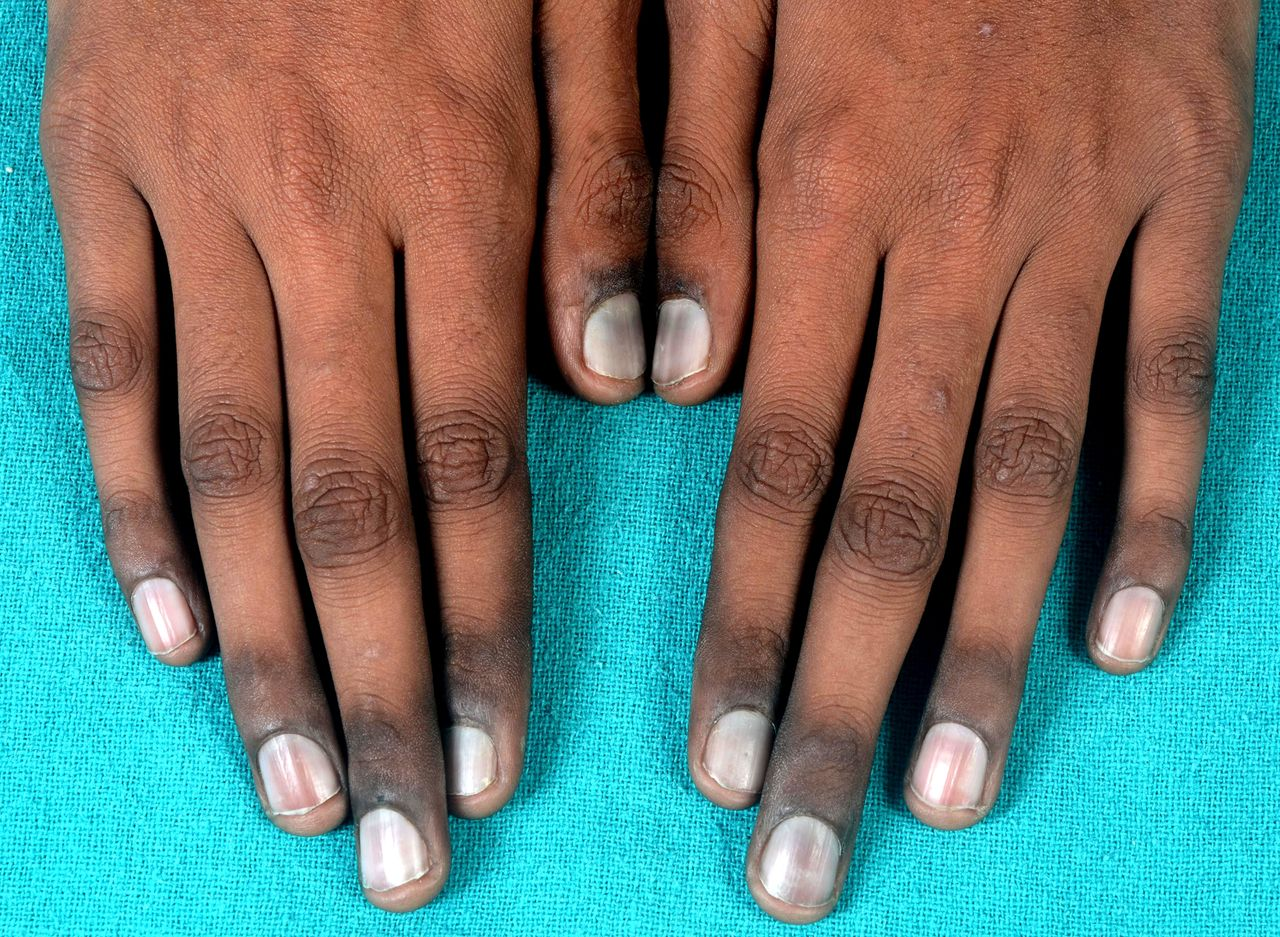 Blue Nails In A Child With HIV Infection