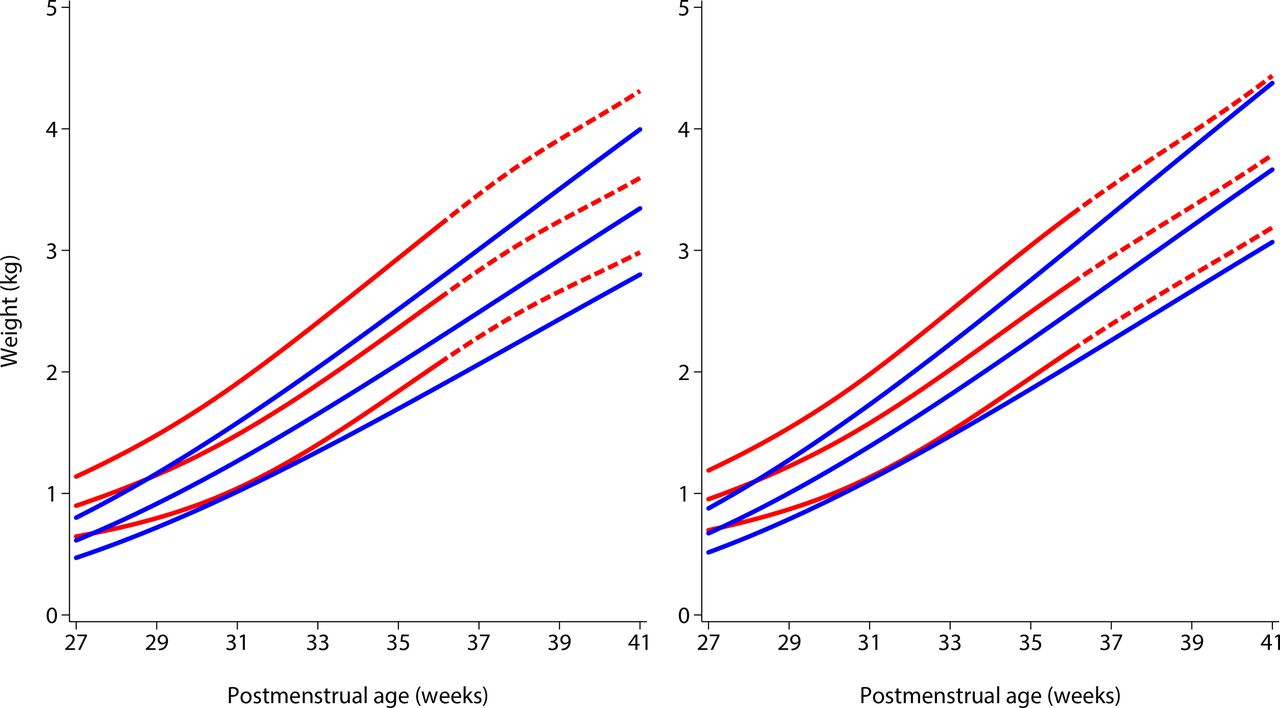 Growth of preterm infants at the time of global obesity   Archives ...