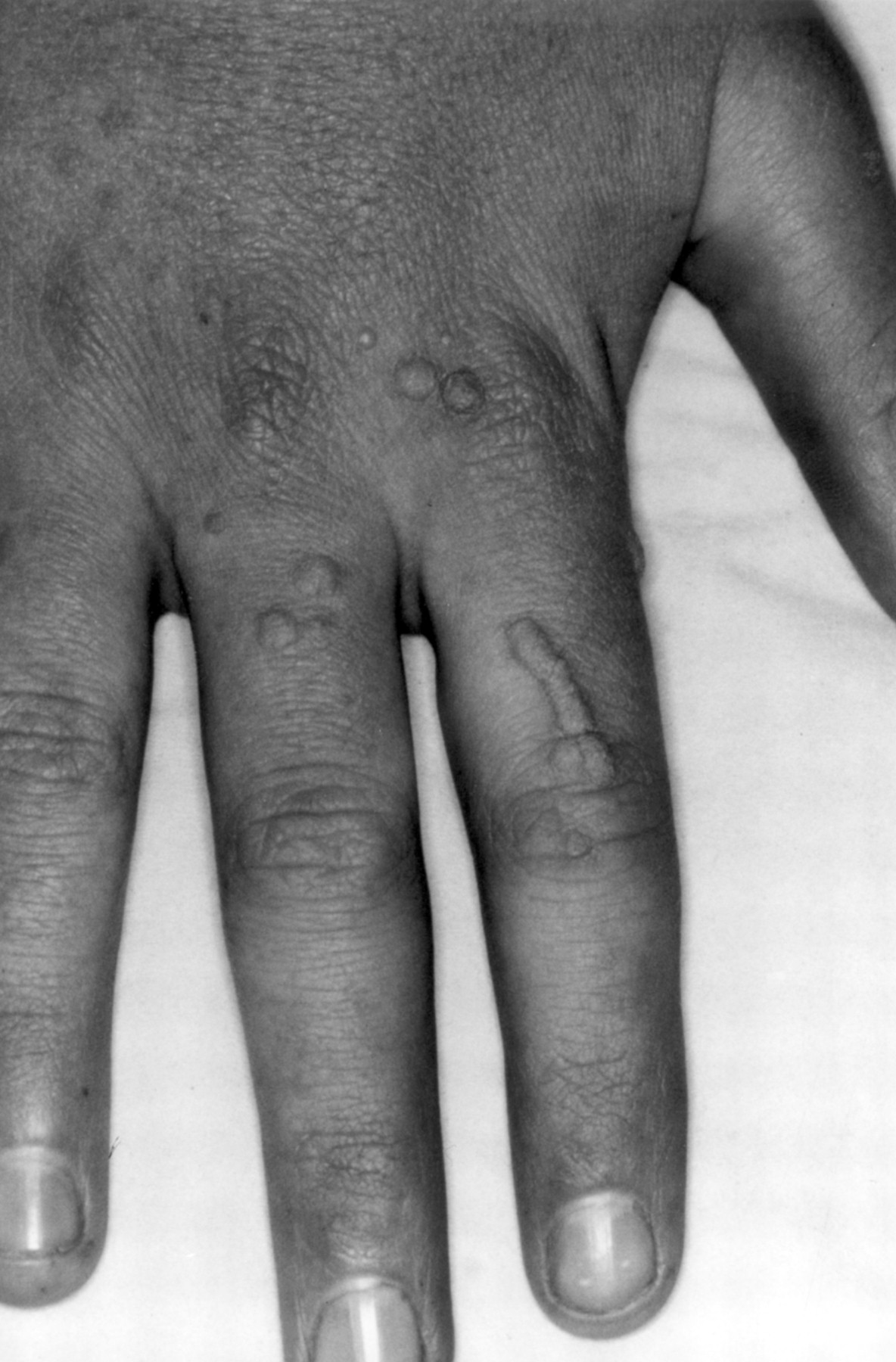 How to manage warts | Archives of Disease in Childhood