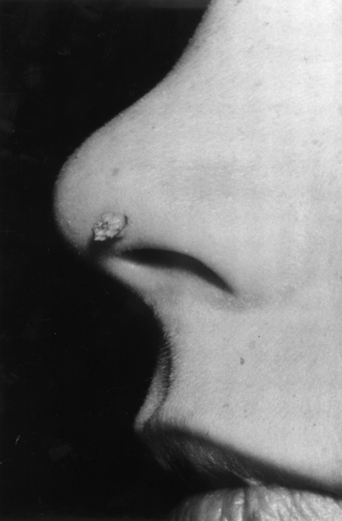 How To Manage Warts Archives Of Disease In Childhood