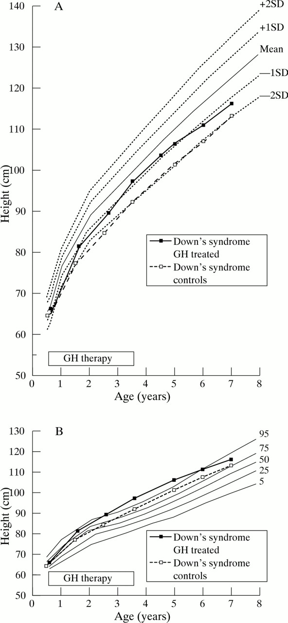 Growth Hormone Treatment In Young Children With Downs Syndrome