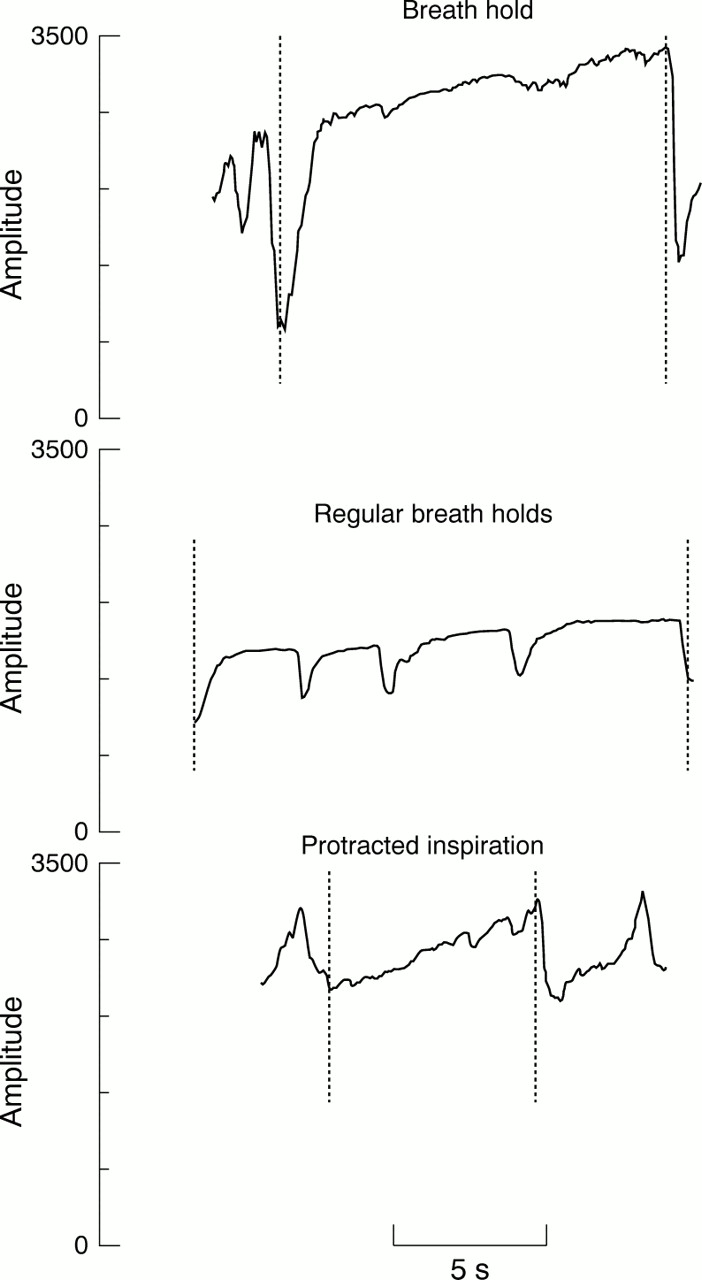 Characterisation of breathing and associated central autonomic