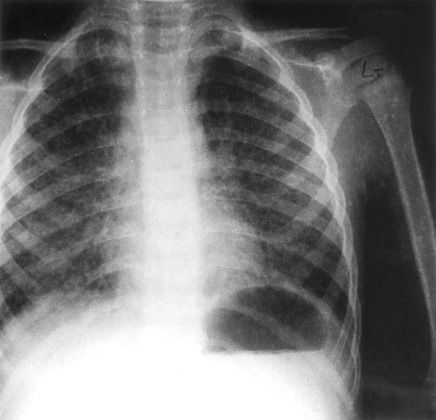 Рентген грудному ребенку фото