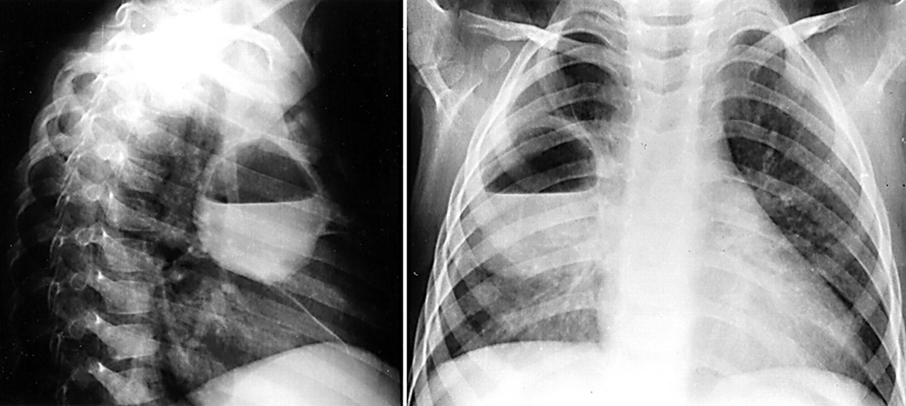 Снимок пневмонии у ребенка фото с пояснениями