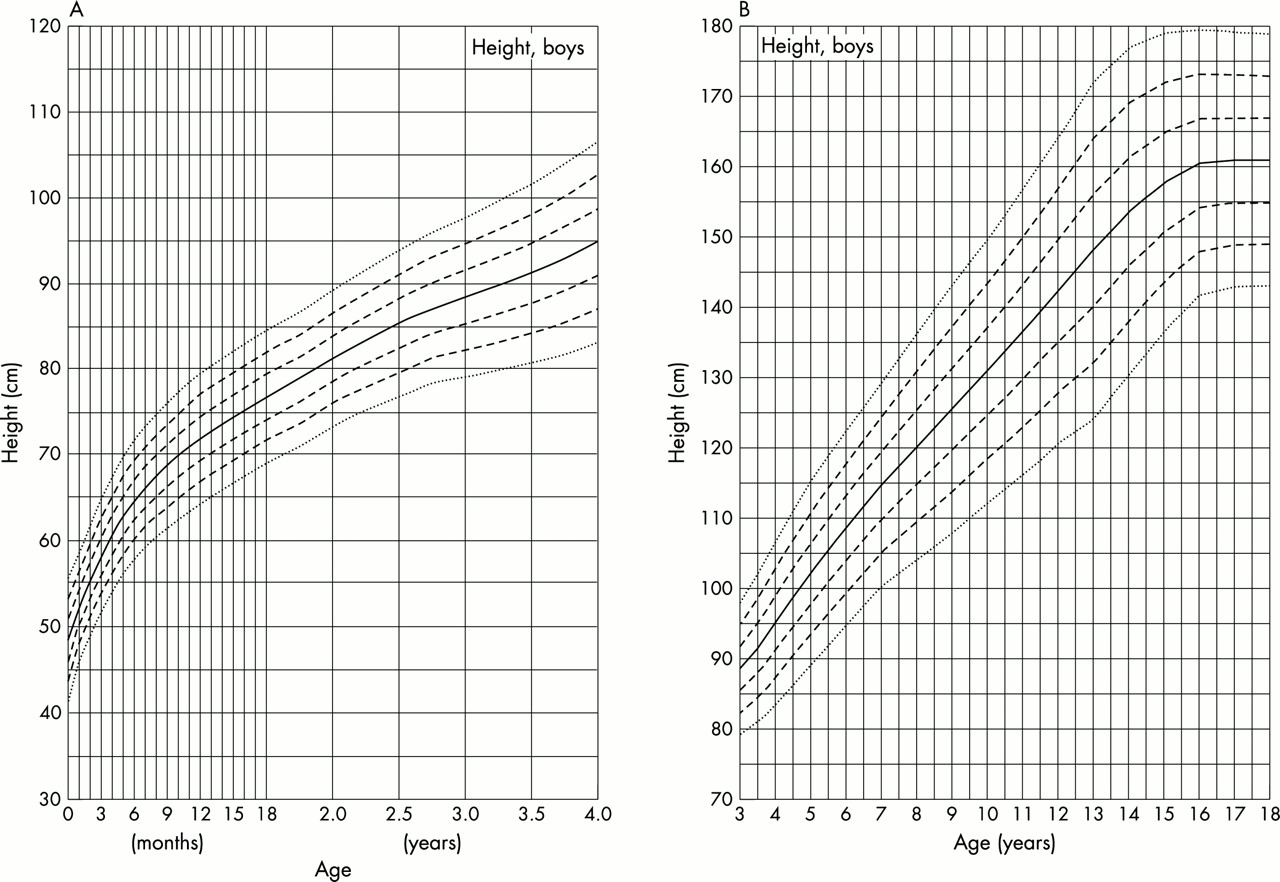 growth charts for down u0026 39 s syndrome from birth to 18 years