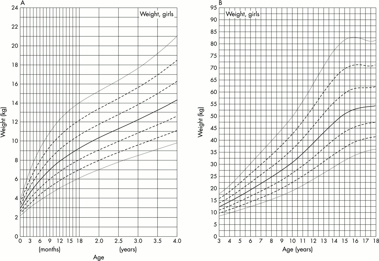 Growth charts for Down\'s syndrome from birth to 18 years of age ...