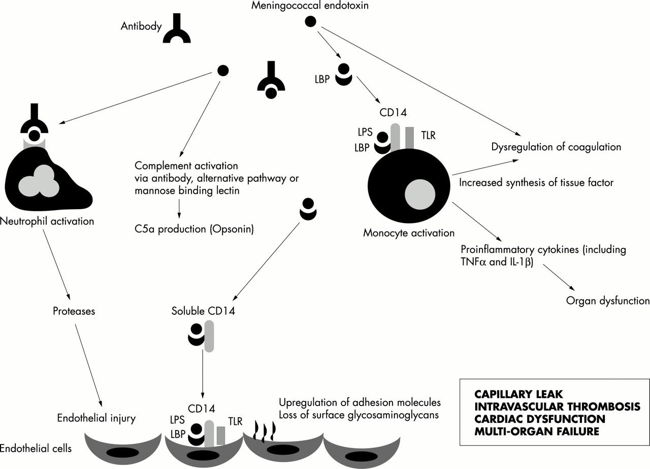 Pathophysiology Of Meningococcal Meningitis And