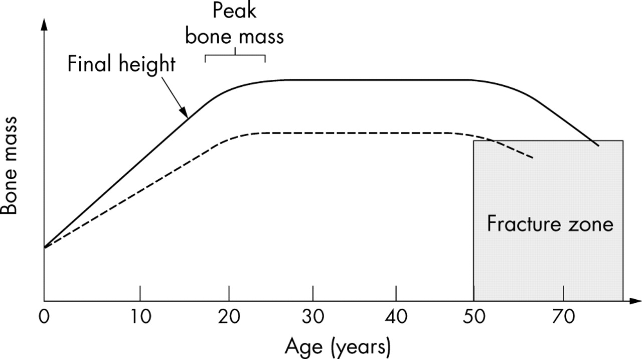 Bone Mass Acquisition In Healthy Children Archives Of Disease In