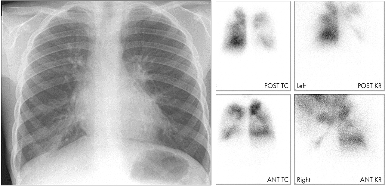 The Radiology Of Chronic Lung Disease In Children