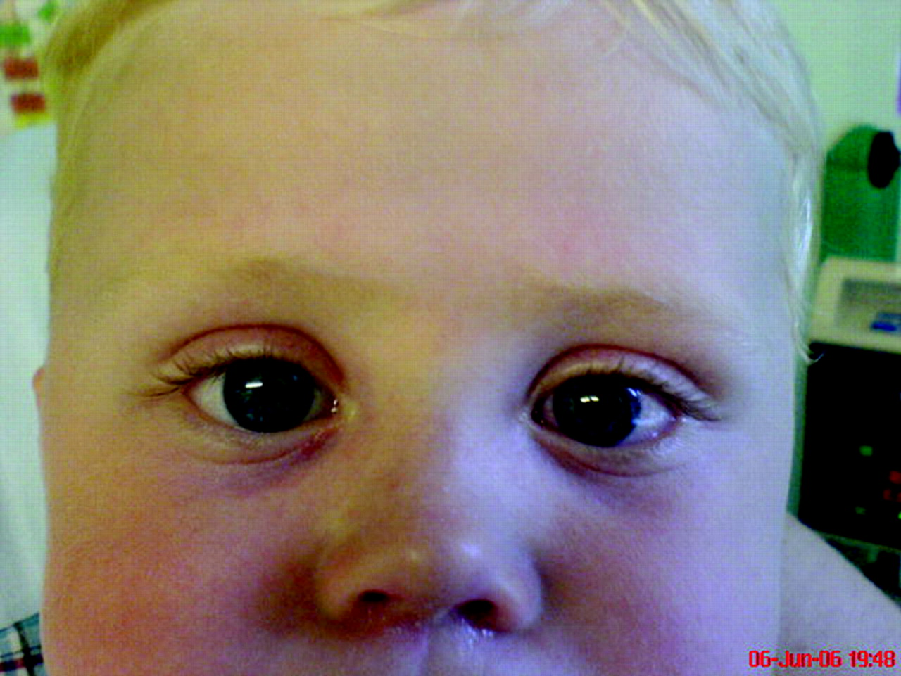 Unilateral fixed dilated pupil in a well child | Archives ...