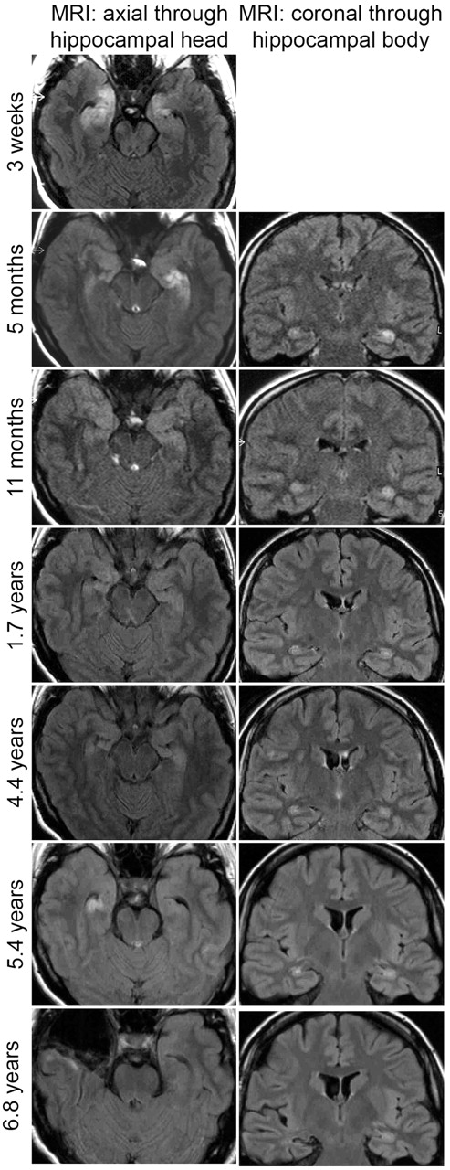 limbic encephalitis at the