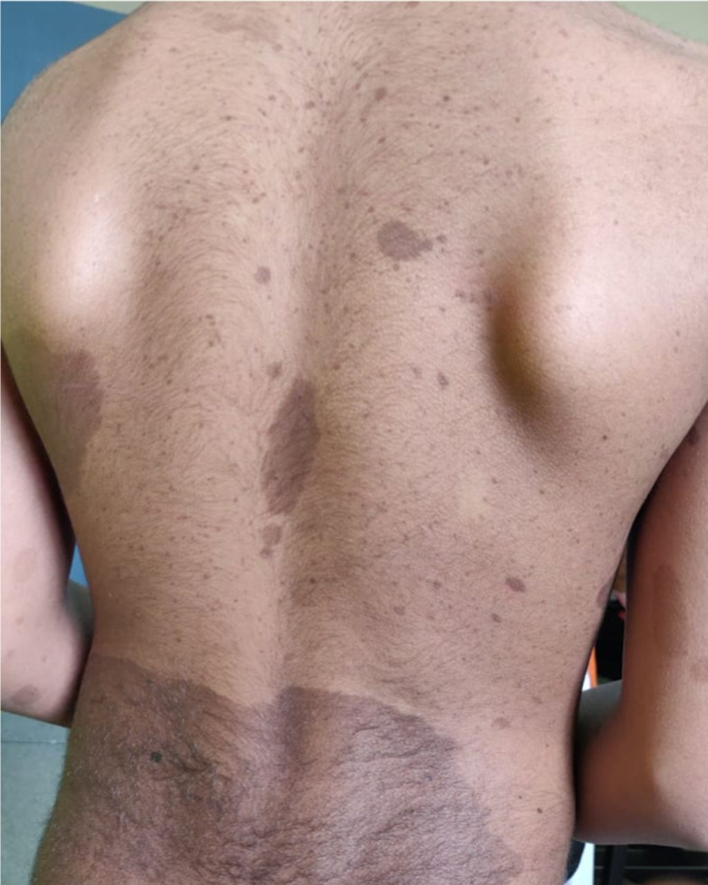 Multiple Cafe Au Lait Macules And Movement Disorder Think Beyond Neurofibromatosis Archives Of Disease In Childhood